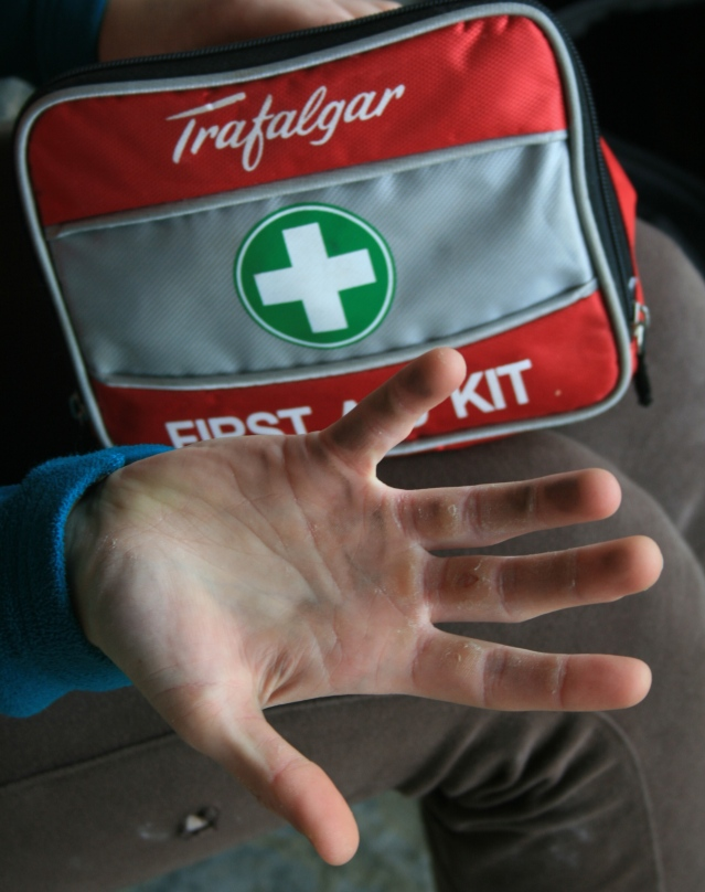 Climbers hands: The rock takes it's toll on athletes.